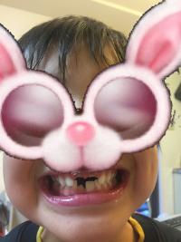 乳歯ケースとわが子